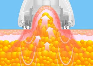 Cavitation ultrasonique avec aspiration